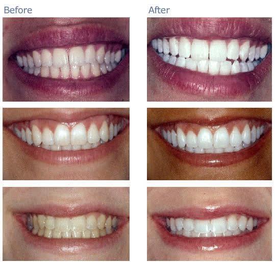 Home Teeth Whitening 3d System Free Remineralization Gel Jane